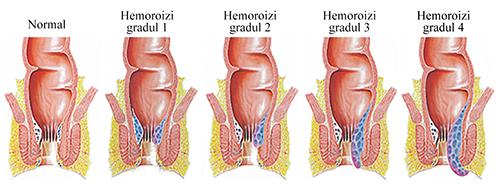 complicatii-hemoroizi