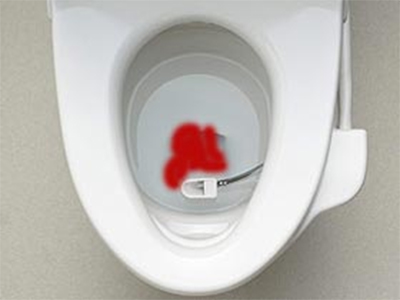 sange-hemoroizi